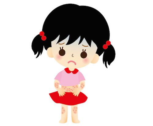 色素性痒疹と糖質制限